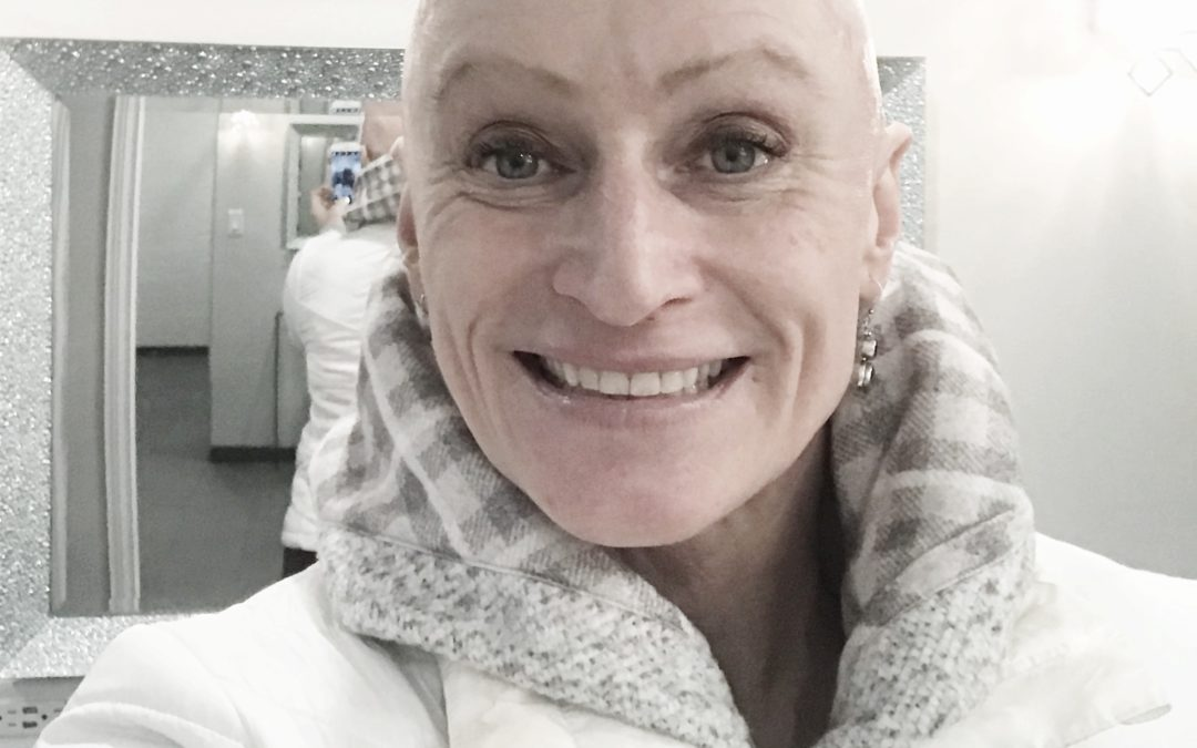 30 Days of Bald – Lessons in Self Love